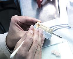 Restauración y estructuras metálicas en prótesis fijas